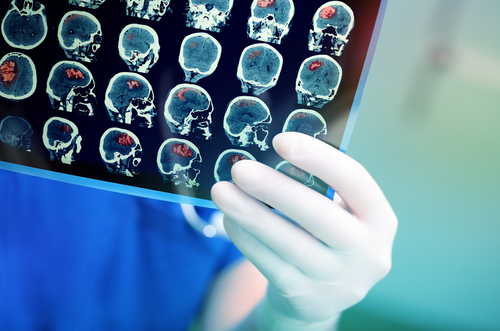 Person in scrubs looking at brain scans